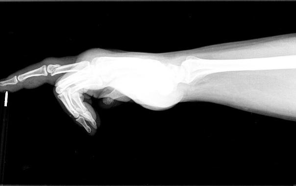 Gazmen broken finger.